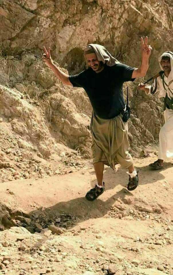 صورة للعميد طارق تظهر جراح قدمه لكثير السير