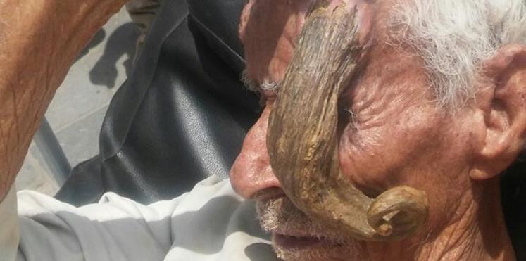 شاهد 5 صور مُرعبة .. شيخ يمني يظهر له قرون طويلة في رأسه 27-08-16-120562421.j