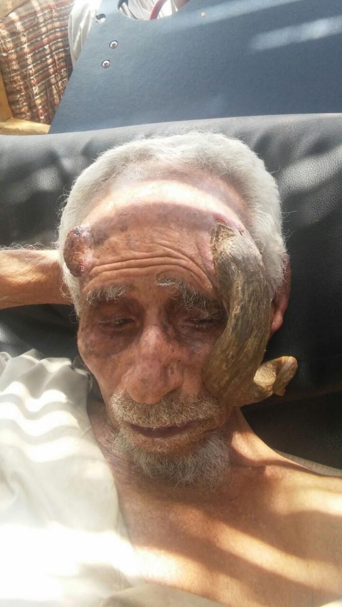 شاهد 5 صور مُرعبة .. شيخ يمني يظهر له قرون طويلة في رأسه 27-08-16-307257142.j