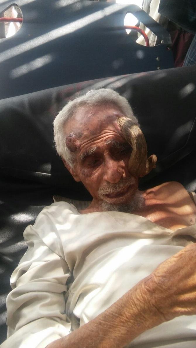 شاهد 5 صور مُرعبة .. شيخ يمني يظهر له قرون طويلة في رأسه 27-08-16-527976557.j