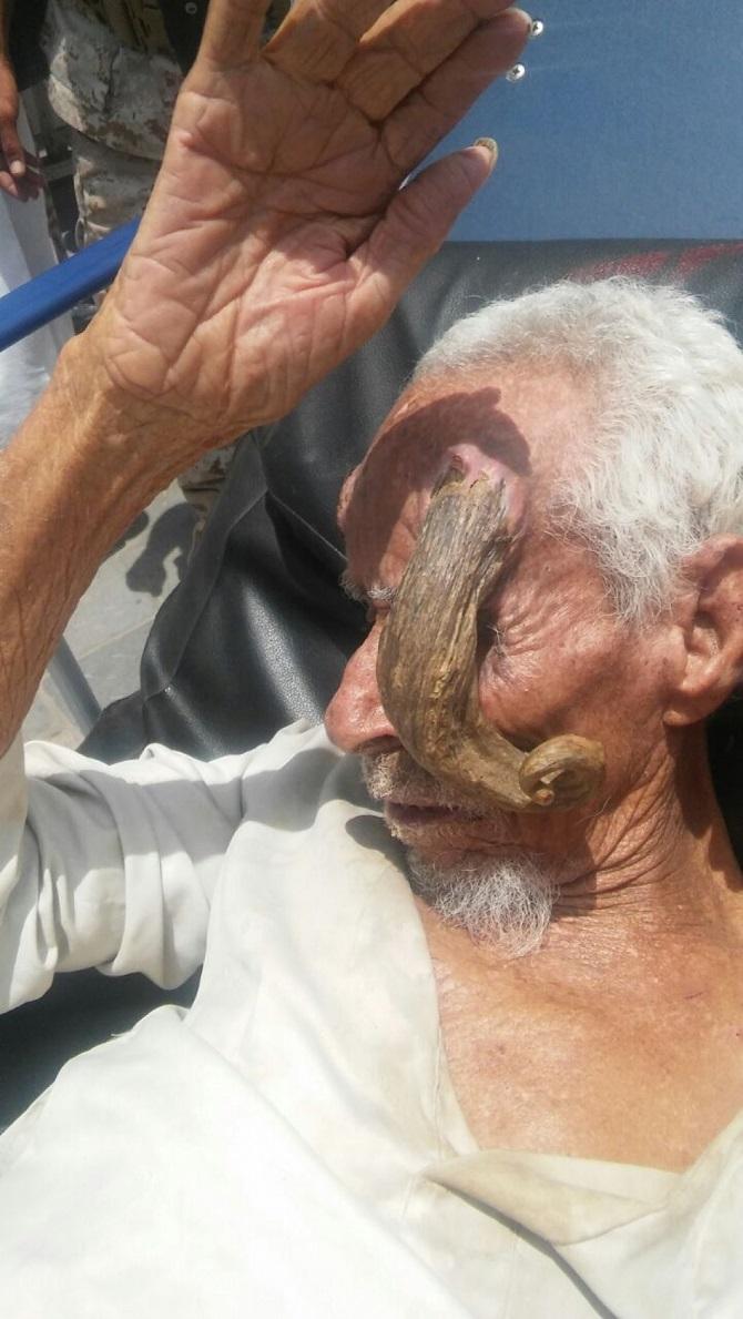 شاهد 5 صور مُرعبة .. شيخ يمني يظهر له قرون طويلة في رأسه 27-08-16-989588303.j